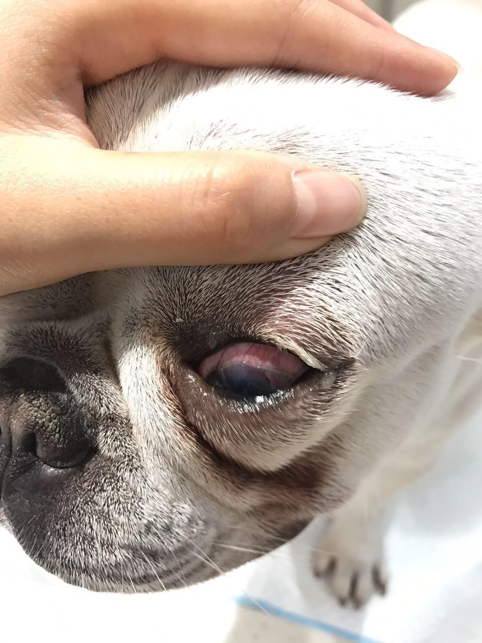 请教医生眼睛问题