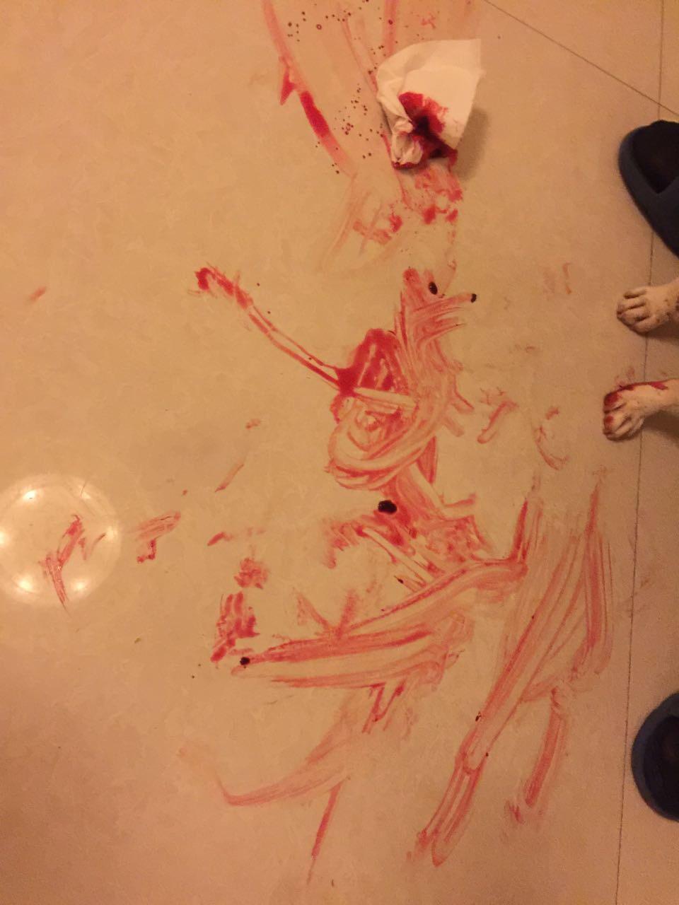 伤口图片流血素材p图