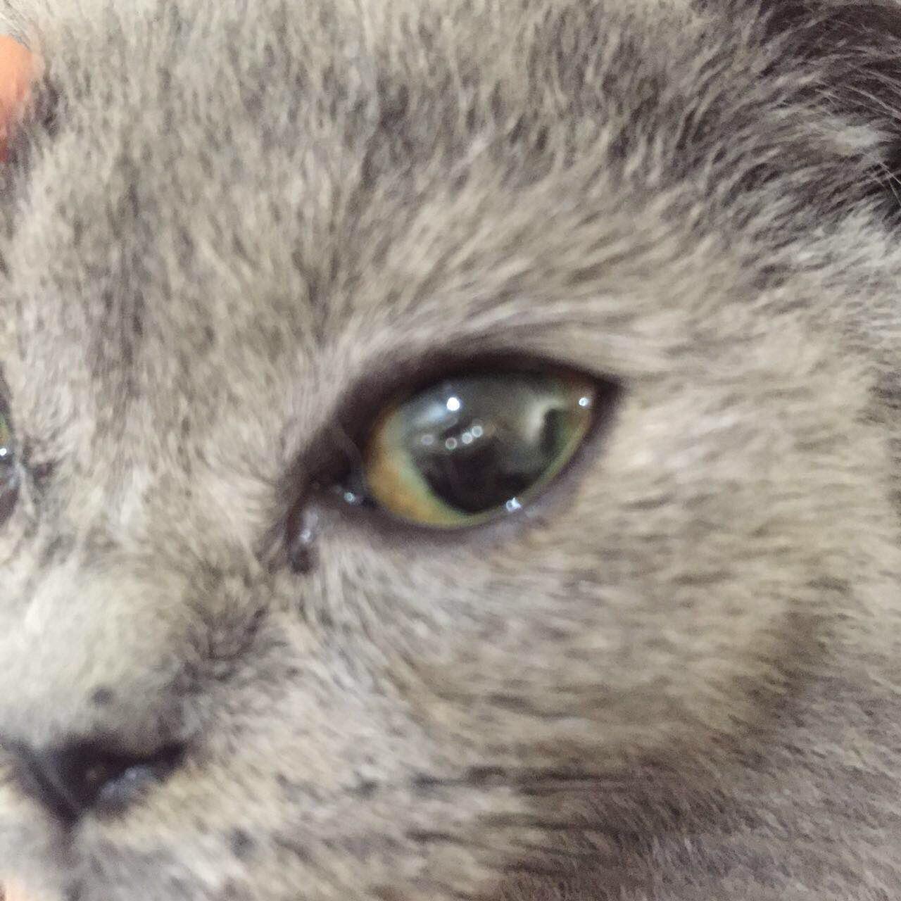 眼睛玻璃体有褶皱